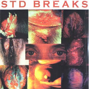 D-Styles Sexually Transmitted Disease Breaks LP